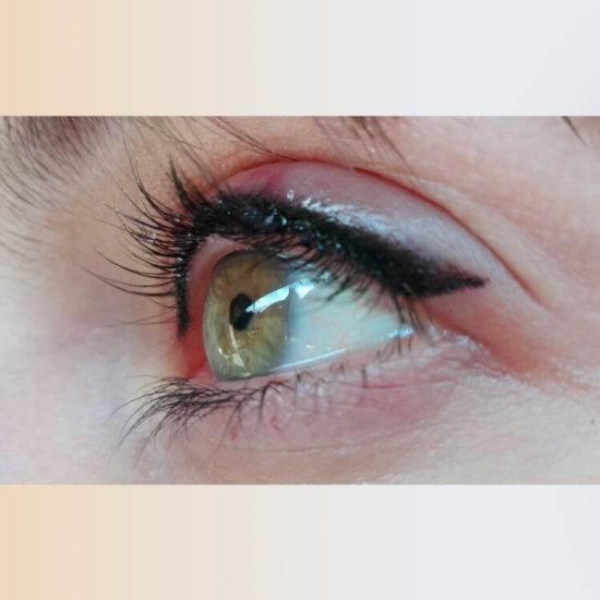 szemhejtetovalas-mosonmagyarovar-portfolio-erna-thumb